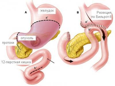 ЛЕКЦИЯ 14. Болезни желудочно-кишечного тракта